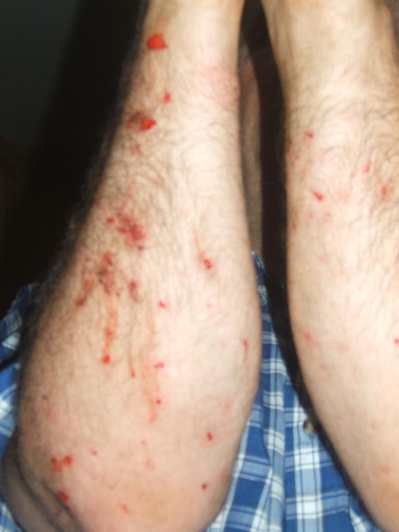 Chasse moustique - Petit moucheron qui pique ...
